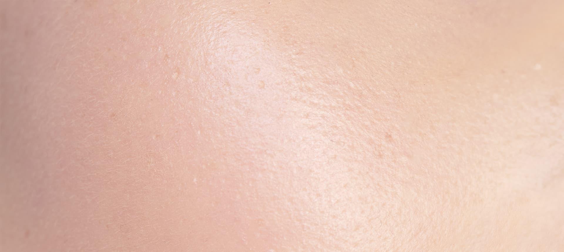 Die Exposom-Faktoren: Die Auswirkungen auf die Haut