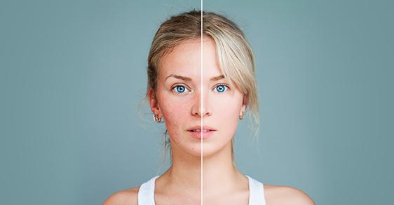 Unreine Haut mit 30: Was tun gegen Pickel und Fältchen