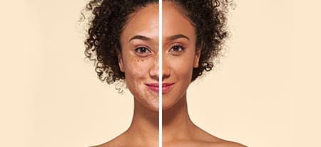 v_before_after-vitiligo_v2.jpg