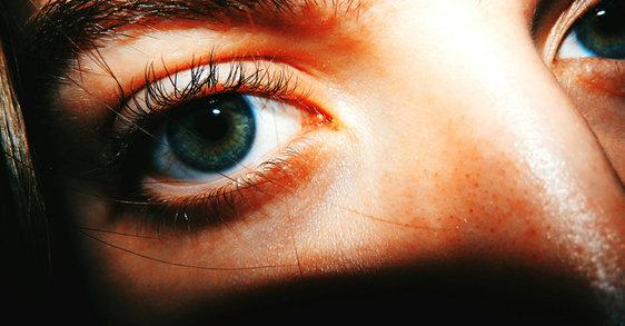 Der Einfluss des Exposoms auf deine Augenpartie
