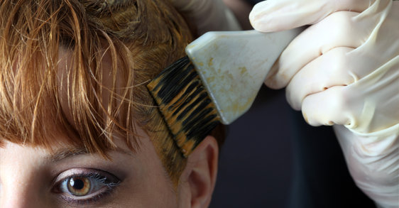 So können Sie juckende Kopfhaut beim Haare färben vermeiden