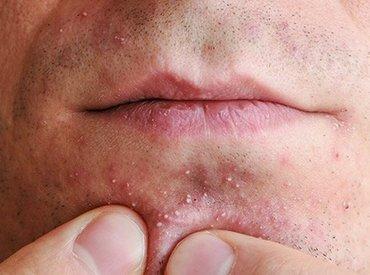 Akne bei Männern: Unsere Gesichtspflege Tipps