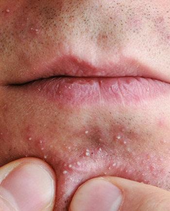 Acné chez les hommes : nos conseils de soins du visage