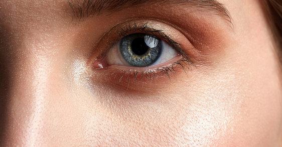 Rosacée et soins du visage : les produits à choisir