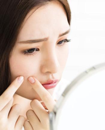 Comment reconnaître l'acné inflammatoire ?