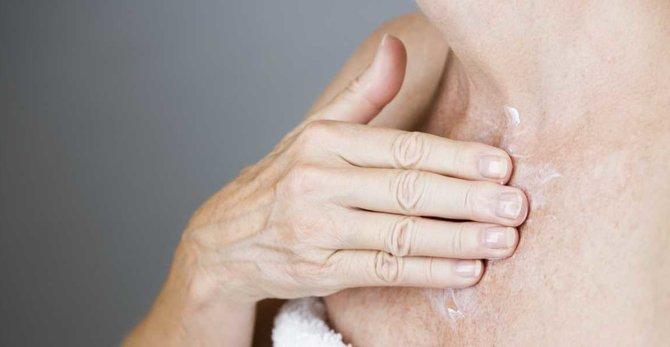 Le risque de cancer de la peau est-il plus important à la ménopause ?