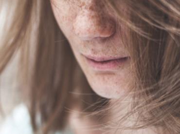 Taches brunes: astuces maquillages pour les camoufler
