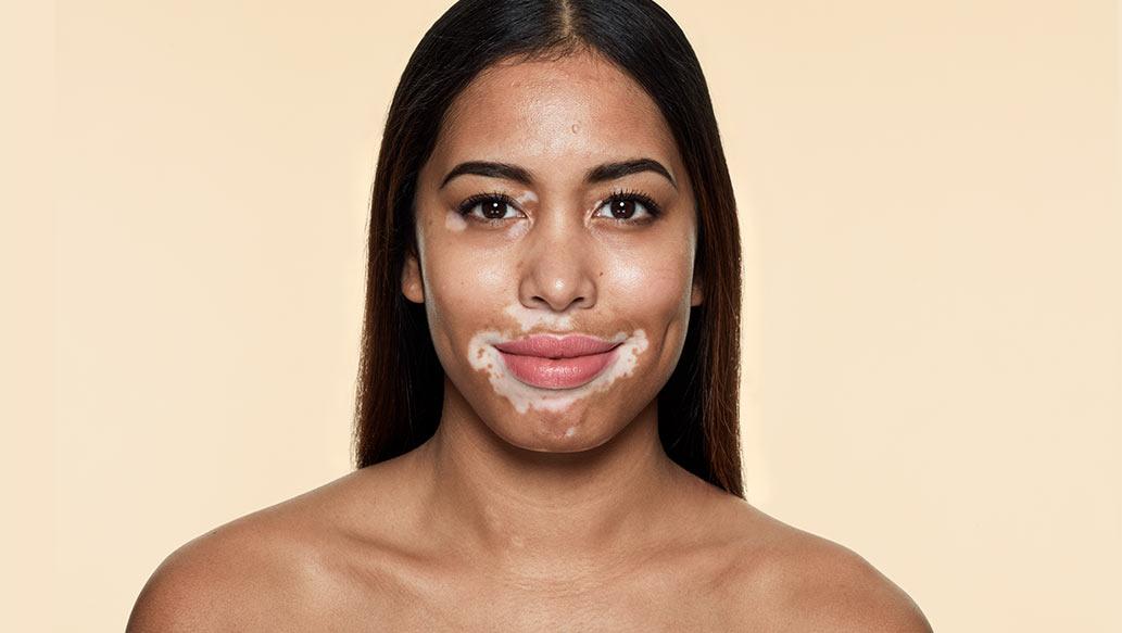 v_before-vitiligo.jpg