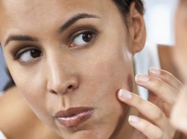 Imperfections, boutons, points noirs sur le visage: comment agir vite et bien?