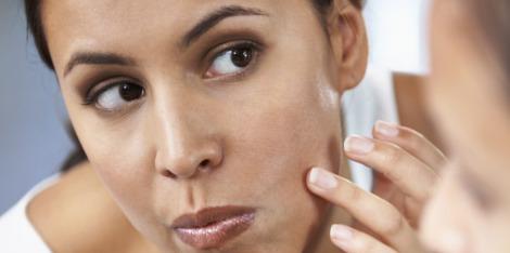 Points noirs, boutons sur le visage et imperfections : Comment agir vite et bien ?
